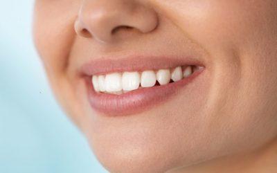 Šta je estetska stomatologija?
